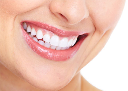 Veneers | Potomac Dental Clinic
