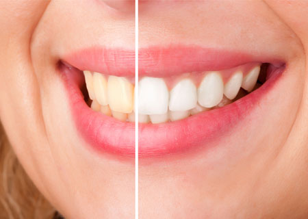 Teeth Whitening | Potomac Dental Clinic